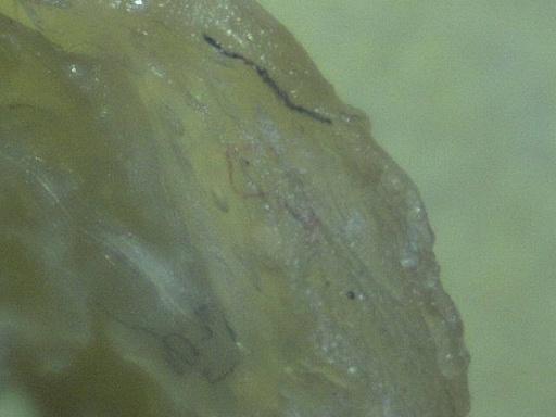 mucus-fibers-60x-3.jpg