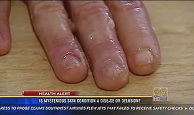 Morgellons and Lemons » Morgellons Watch